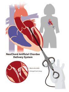 NeoChord Artificial Chordae Delivery System