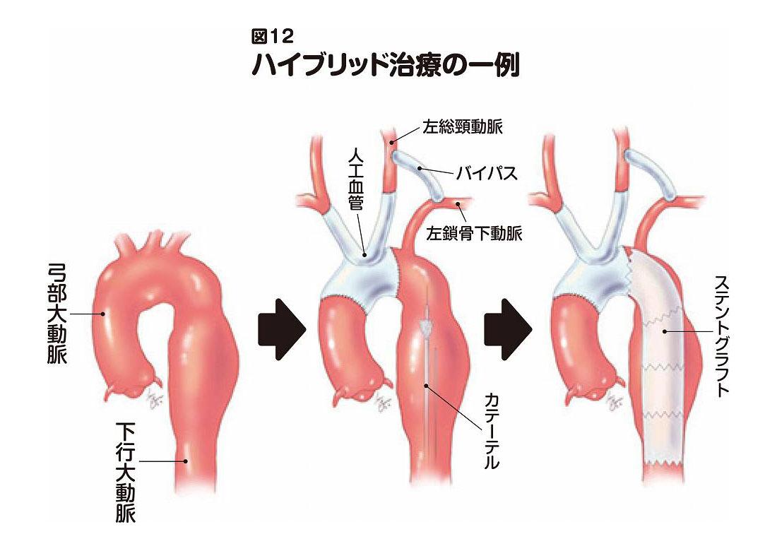 心臓 大動脈 解離